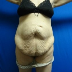 Manhattan abdominoplasty before 11